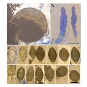 European record of Subramaniula thielavioides on opium poppy